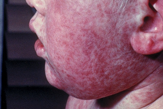Measles..it's more than just a rash