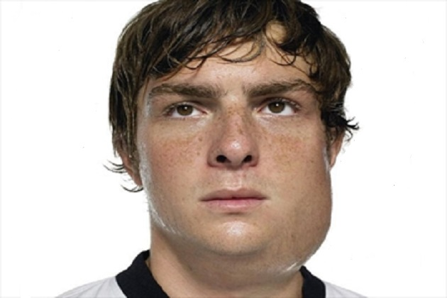 Get The Facts About Mumps